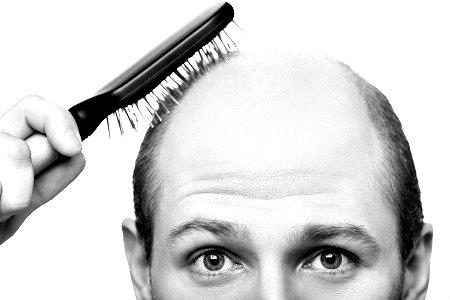 Los remedios naturales elaborados con plantas medicinales pueden ayudar a frenar la caída del cabello