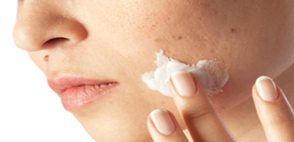 plantas medicinales para el acné